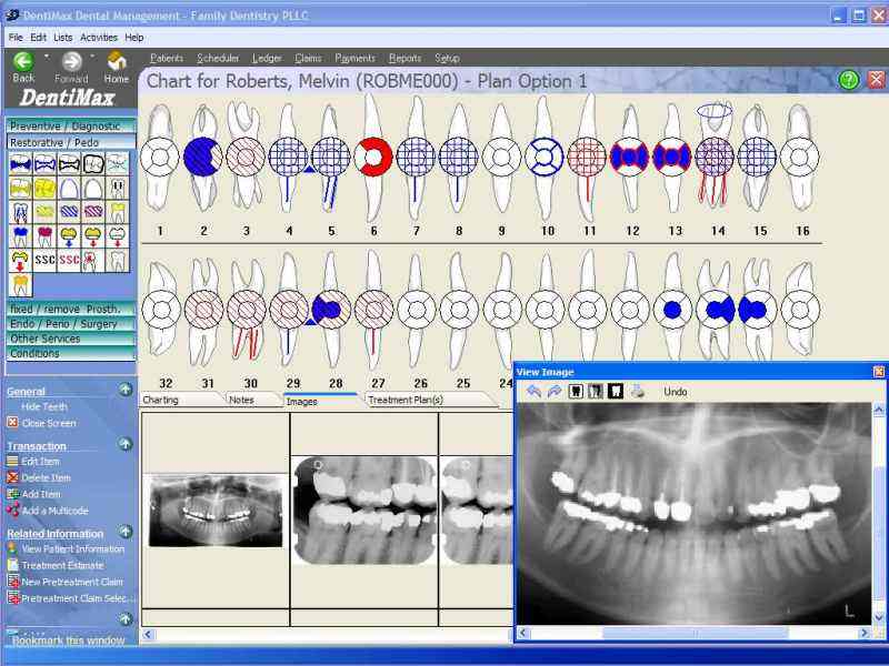 Dental Software Offline Installer Download